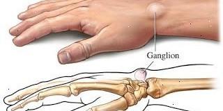 bolinha no dedo indicador