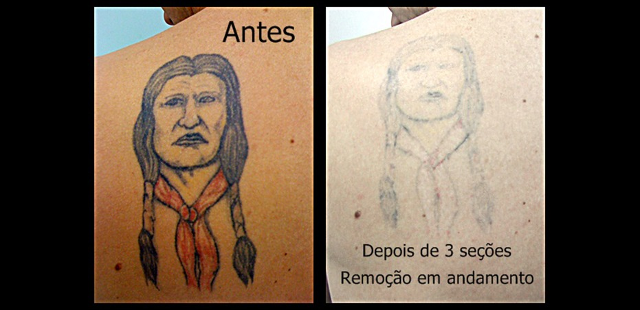 Remoção de tatuagens